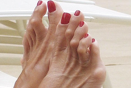 молоткообразные пальцы